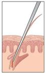 electrolysis versus laser nyc p01