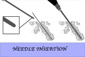 NeedleInsertion