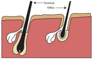 terminal hair